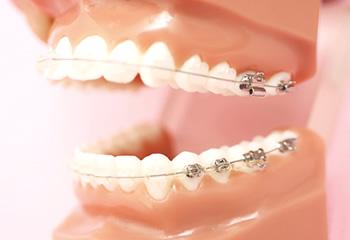 歯並びが悪いとどうなるの?
